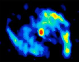 M51 Galaxy Resolved by Submillimeter Array Radio Interferometry Example