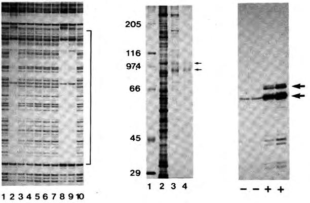 Analyses of affinity-purified Sp1 protein DNase I footprint on SV40 promoter SDS-PAGE/ silverstain 6 x GC-boxes Sp1 Lane contains total cell proteins prior to affinity purification;