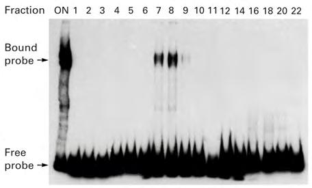 NaCl Gel shift : electrophoretic mobility shift assay (EMSA) for studying the interaction of Sp1 with GC-box Sp1 GC-box * Protein-DNA complex * Free DNA probe 1.
