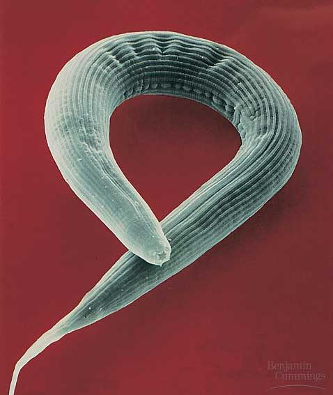 The cylindrical bodies of roundworms are covered with a tough exoskeleton, the cuticle.
