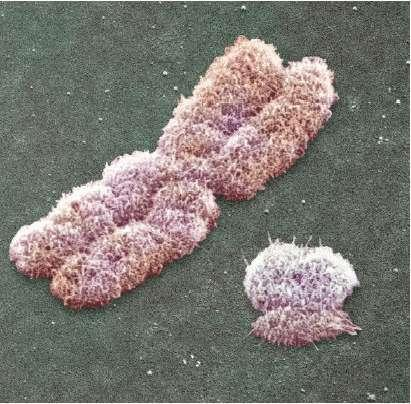 Types of chromosomes Human females have a homologous pair of X chromosomes (XX) Human