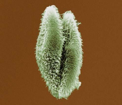 Single-celled eukaryotes ex: yeast,