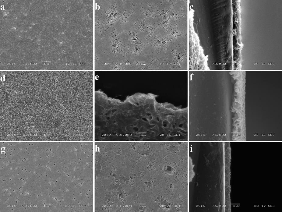 5 TEM images of Zn 5 (OH) 8 (NO 3 ) 2 $2H 2 O (a and b), Co 5 (OH) 8 (NO 3 ) 2 $2H 2 O (c and d) and Co-doped Zn 5 (OH) 8 (NO 3 ) 2 $2H 2 O thin films (e and f) formed at 2 h in the presence of dual