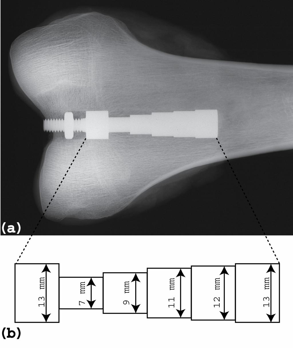 Figure 4.2 (a) A contact x-ray (Faxitron) of the distal femur with the stepped titanium implant inserted.