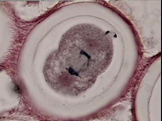 cytoplasm, this is really a part of Telophase In animal cells cell pinches inward forming a cleavage furrow to form two new daughter cells In