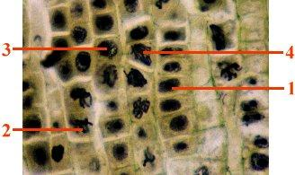 Here is a photomicrograph showing the cells