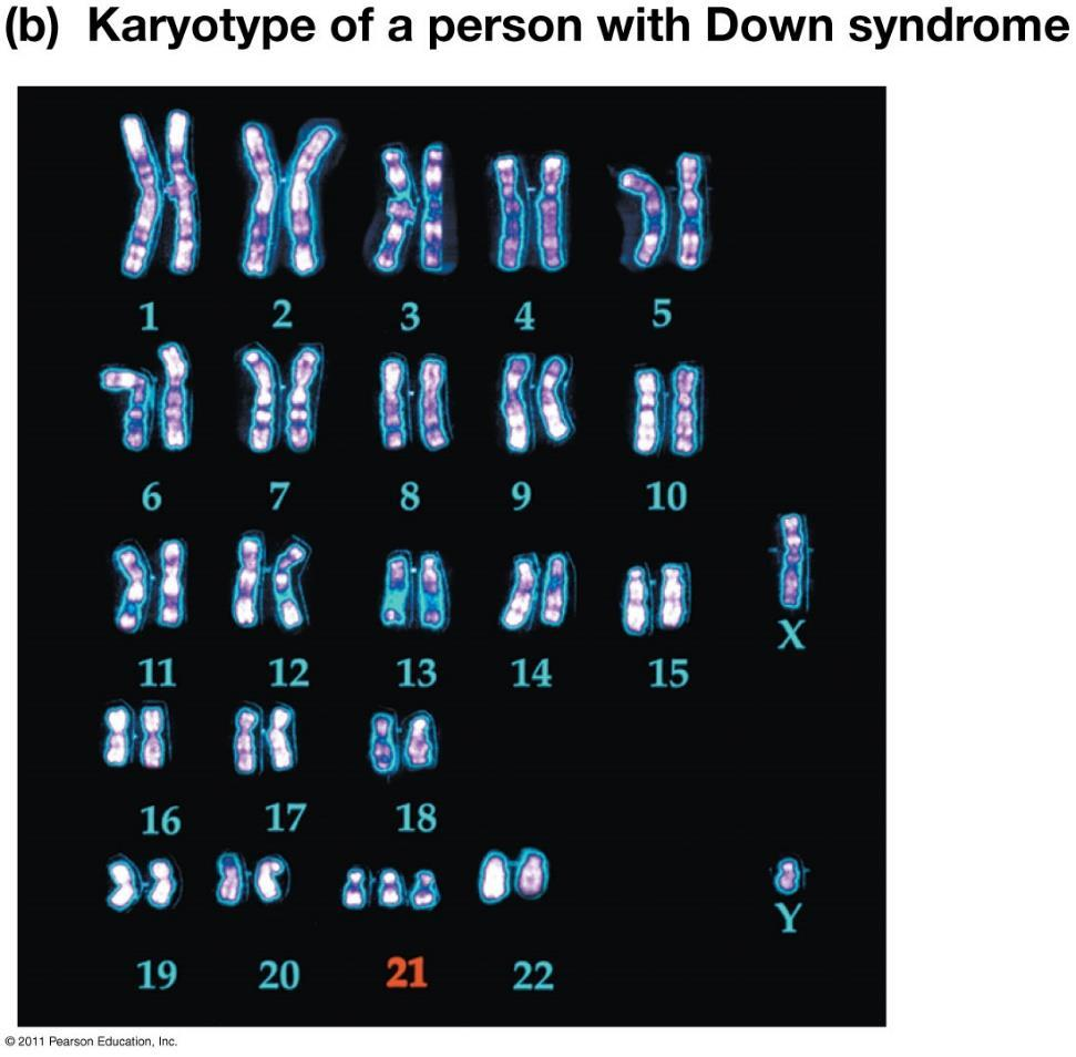 Mistakes during meiosis can produce gametes with abnormal numbers of chromosomes: Normally gametes are haploid or n C. Trisomy 21 1. This is the most common chromosomal abnormality. 2. A person has three copies of chromosome 21.